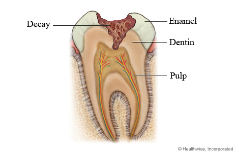 Bulimia and Tooth Decay